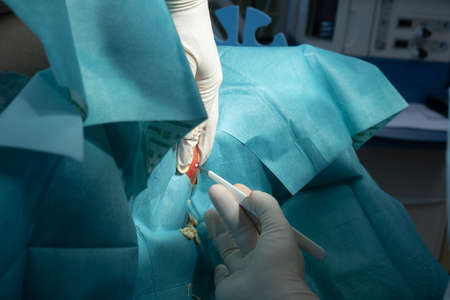 A surgeon opens a large abscess with a scalpel in a hospital