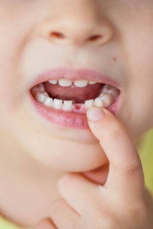 The child dropped the first milk tooth. Happy little boy and milk tooth. Boy. Zdjęcie Seryjne