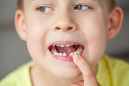 The child dropped the first milk tooth. Happy little boy and milk tooth. Boy.