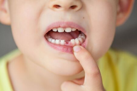 The child dropped the first milk tooth. Happy little boy and milk tooth. Boy. Stock Photo