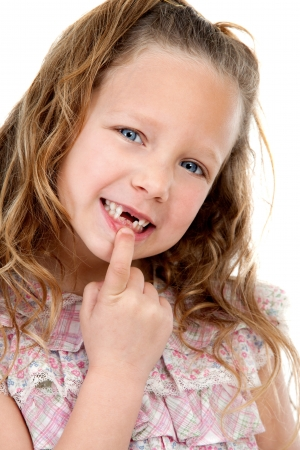 missing: Close up Portrait of cute little girl showing her missing teeth  Isolated on white background  Stock Photo