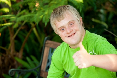 Close up portrait of cute handicapped boy showing thumbs up outside. photo