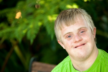 syndrome: Close up face shot of friendly handicapped boy outdoors. Stock Photo