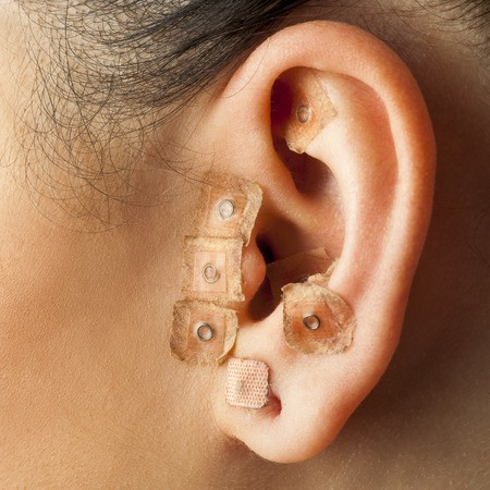 ear acupuncture: Macro close up of auriculotherapy treatment on human ear.
