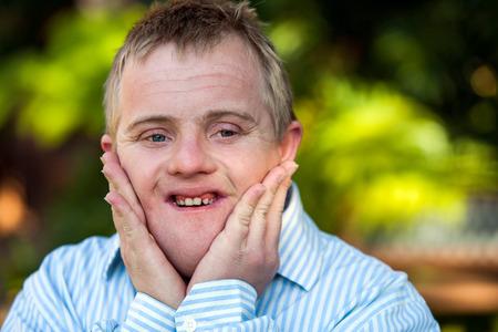Close-up portret van gehandicapte jongen met de handen op gezicht in openlucht.