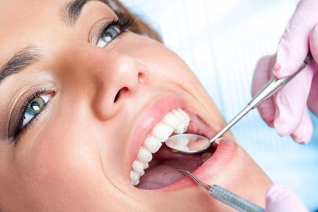 caries dental: Extreme close up de una hermosa joven que tiene dental chequeo. Foto de archivo