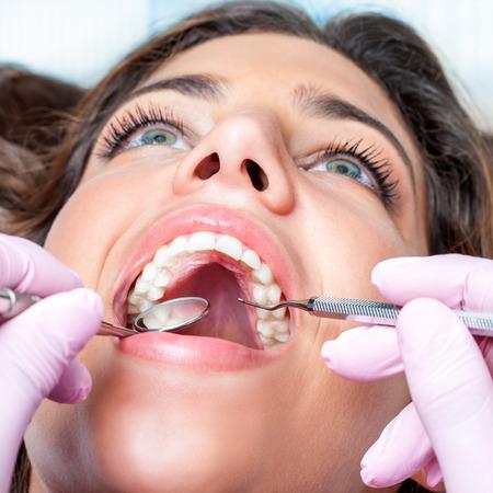 boca abierta: Extreme close up de la mujer con la boca abierta al chequeo dental Foto de archivo