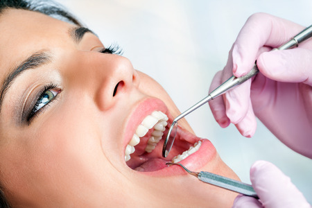 practise: Macro close up of woman having dental check up in clinic. Stock Photo