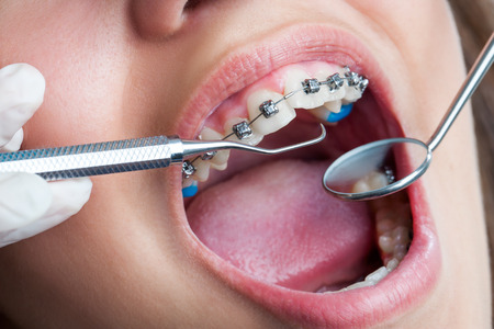 girl open mouth: Extreme macro close up of open human mouth showing stainless steel braces. Stock Photo