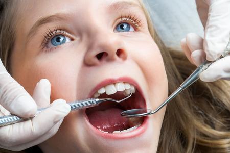 limpieza: Macro cerca Retrato de la ni�a con la boca abierta que tiene dental chequeo. Foto de archivo