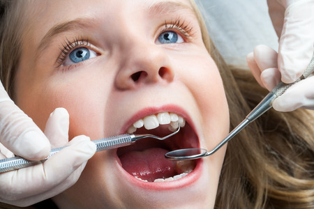 oral care: Macro close up portrait of Little girl with open mouth having dental check up.