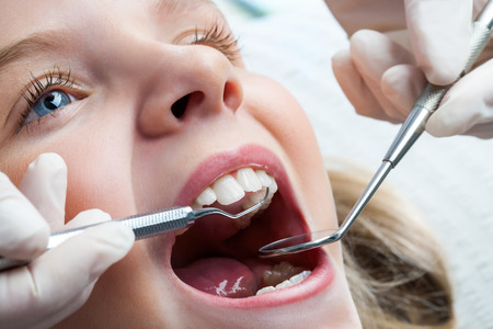 oral surgery: Macro close up of young child with open mouth at dentist. Stock Photo