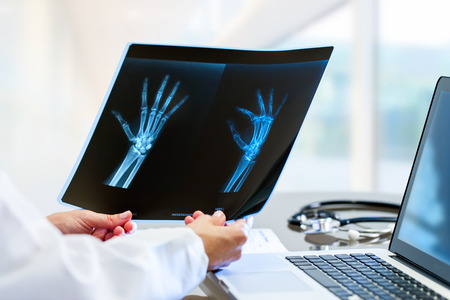 Close up of Female doctor at desk with laptop holding and reviewing trauma x-ray. photo