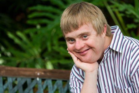 challenged: Close up facial portrait of handicapped young man outdoors resting chin on palm of hand.