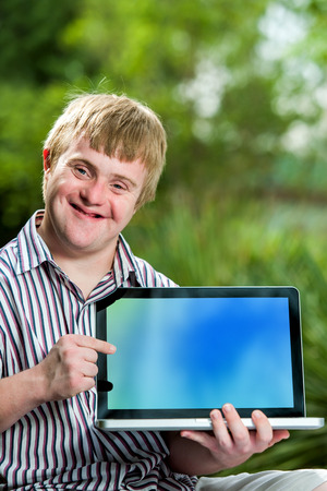challenged: Close up portrait of handicapped student pointing at blank laptop screen against green outdoor background. Stock Photo