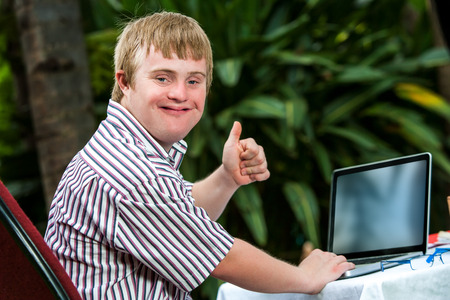 Portrait of handicapped student doing thumbs up sign next to laptop outdoors.