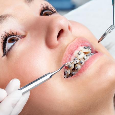 caries dental: Extreme close up de las manos trabajando en aparatos dentales con hacha y espejo de boca. Macro cerca de la boca femenina que muestra aparatos dentales.