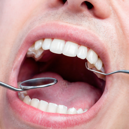 hatchet man: Extreme close up of Human male mouth showing teeth with dental hatchet and mouth mirror.