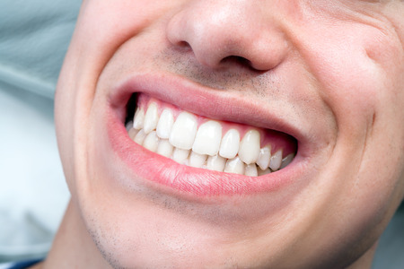mouth close up: Macro close up of human male mouth showing perfect white teeth. Stock Photo
