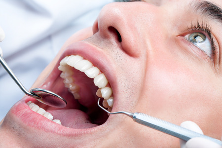 Extreme close up of Young man whitening teeth at dentist. Open human mouth showing teeth with hatchet and mouth mirror.