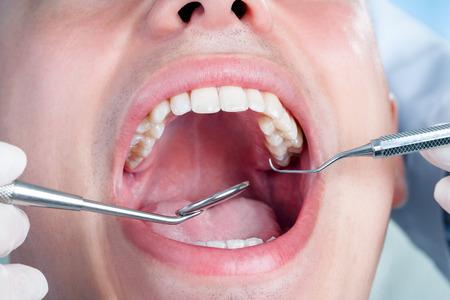 boca abierta: Extrema de cerca de la boca masculina humana mostrando teeth.Dentist trabajar con el hacha y la boca espejo en los dientes.