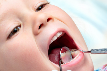 open  women: Extreme close up of infant having dental examination. Hatchet and mouth mirror working on open mouth. Stock Photo