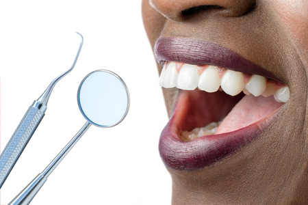 mouth close up: Extreme close up of smiling African female mouth showing white teeth.Hatchet and mouth mirror isolated on white background.