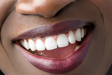 Macro close up of african female mouth showing perfect white teeth. Stock Photo