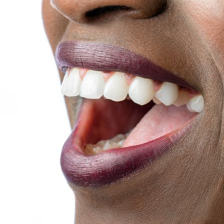 caries dental: Macro cerca de la boca femenina africana. la boca abierta mostrando los dientes blancos perfectos aisladas sobre fondo blanco.