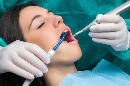 Close-up macro gezicht schot van de jonge vrouw met tandheelkundige cleaning.Hands het dragen van handschoenen werken op de tanden met speeksel ejector en waterzuivering unit.