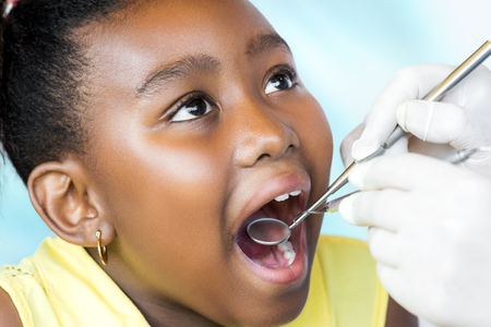 Close up macro portrait of cute little african girl with mouth open having dental health checkup. Dentist examining teeth with hatchet and mouth mirror.