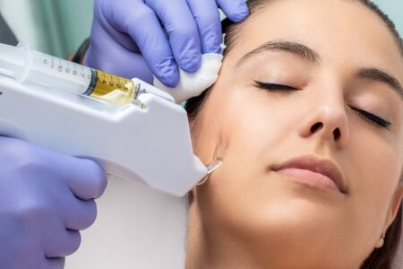 Therapist removing scar with micro needling technology. Non surgical treatment applied on female cheek. Standard-Bild