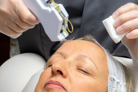 Macro close up middle aged woman having cosmetic facial plasma lift with micro needle gun. Therapist injecting enzymes on woman's forehead.