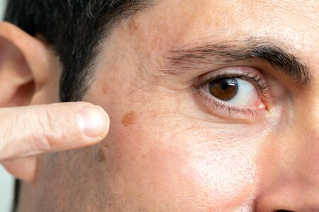 Macro close up detail of facial melanoma on middle aged man. Hand pointing with finger at mole next to eye.