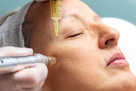 Macro close up of therapist injecting enzymes  with derma pen around eyes on senior woman.
