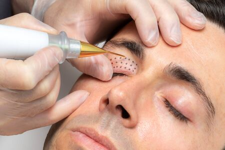 Close up macro detail of middle aged man having skin tightening on eyelids with laser plasma pen. Zdjęcie Seryjne