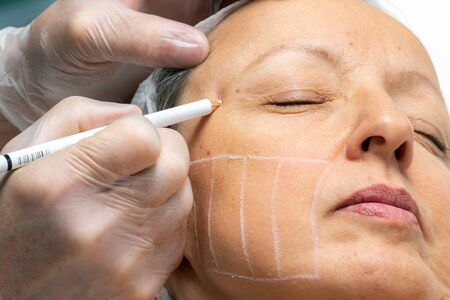 Macro close up o hands painting facial guidelines for hifu energy treatment on middle aged woman's cheek.