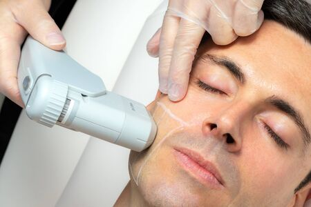 Close up top view portrait of middle aged man having cosmetic facial high intensity focal ultrasound treatment on cheek. Zdjęcie Seryjne