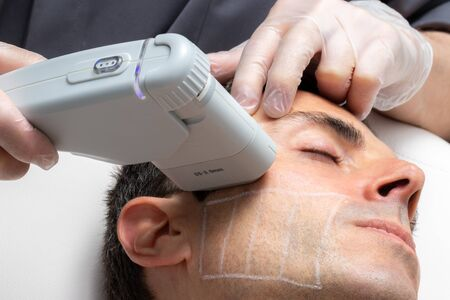 Close up portrait of middle aged man having cosmetic facial high intensity focal ultrasound treatment on cheek.