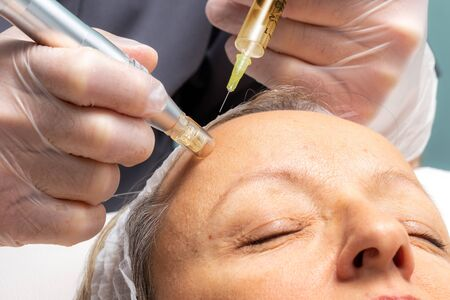Macro close up of therapist injecting enzymes  with derma pen on woman's forhead.