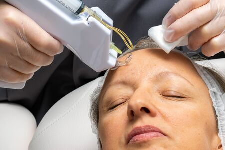 Macro close up middle aged woman having cosmetic facial plasma lift with micro needle gun.