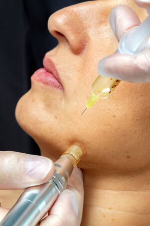 Macro close up detail of therapist injecting enzymes with derma pen on senior woman.
