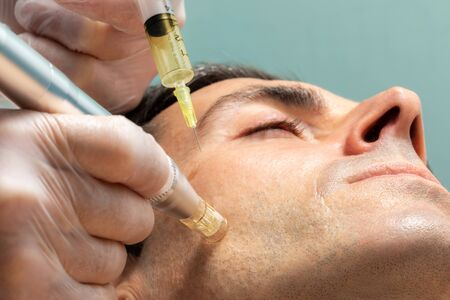 Macro close up of therapist injecting enzymes on cheek with derma pen of middle aged man. Stock Photo