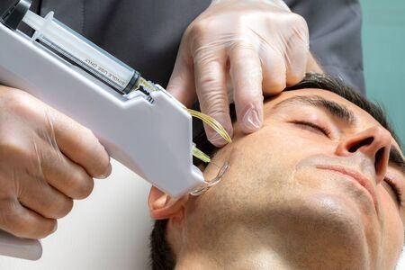 Macro close up middle aged man having cosmetic facial plasma lift on cheek with micro needle gun. Zdjęcie Seryjne