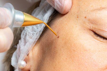 Macro close up detail of laser plasma pen removing facial wart on middle aged woman. Zdjęcie Seryjne