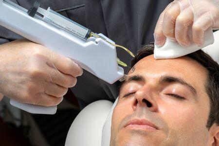 Macro close up middle aged man having cosmetic facial plasma lift on forehead with micro needle gun. Zdjęcie Seryjne