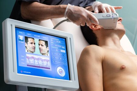 Middle aged man having cosmetic facial high intensity focal ultrasound treatment on cheek. Digital interface of ultrasonic equipment and patient in background.