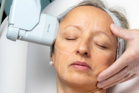 Top view of woman having cosmetic facial high intensity focal ultrasound treatment on side of face. Zdjęcie Seryjne