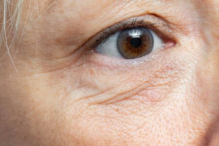 Extreme close up detail of under eye wrinkles and sagging skin on middle aged woman. Stock Photo