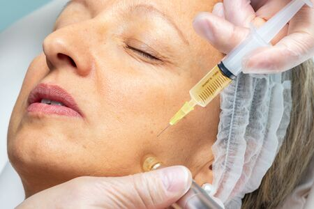Macro close up of therapist injecting enzymes  with derma pen on woman's cheek.
